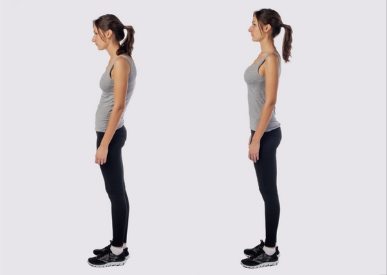 how to correct sway back posture
