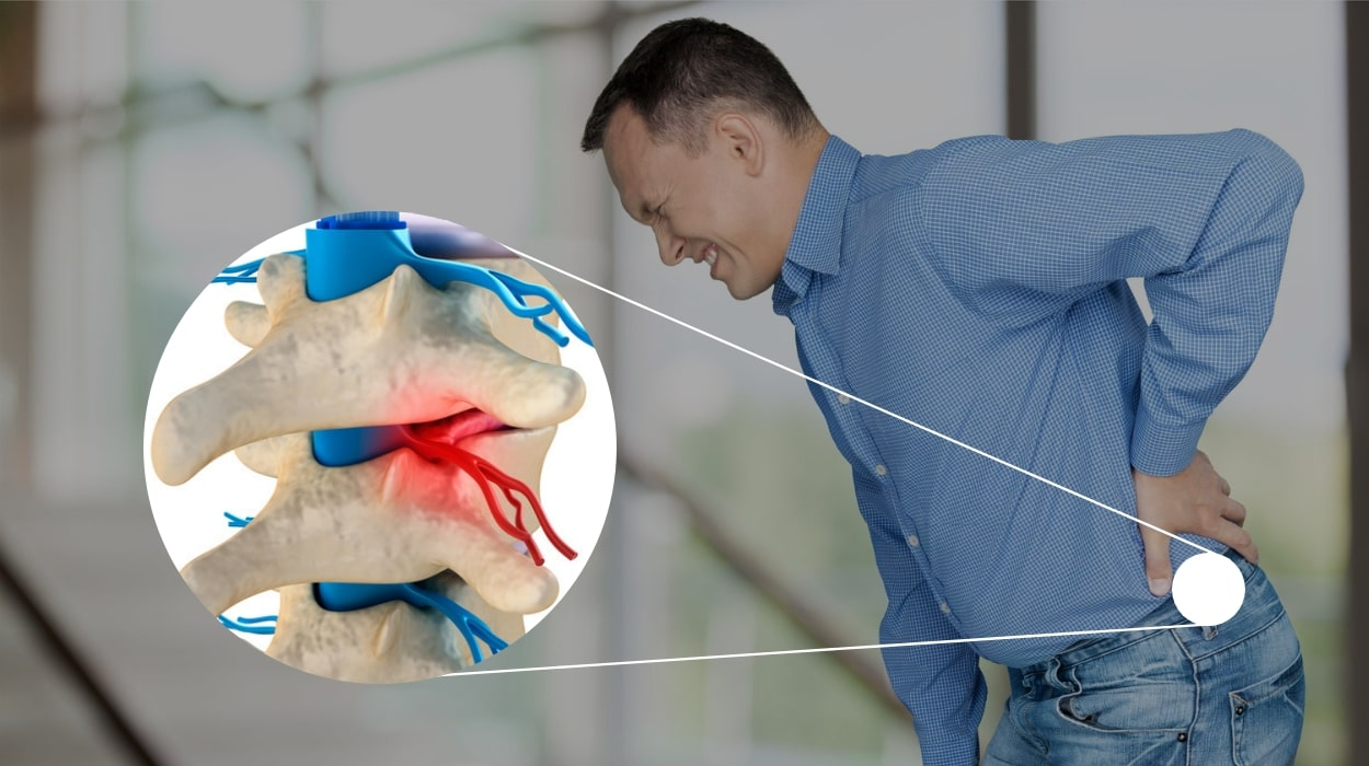 sciatica nerve pain treatment